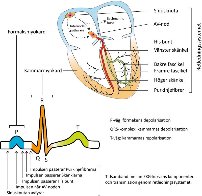 Figur 1. Hjärtats fyra rum och retledningssystemet. Från sinusknutan avfyras en depolariserande impuls som färdas genom förmaken och via AV-noden till kammarna.
