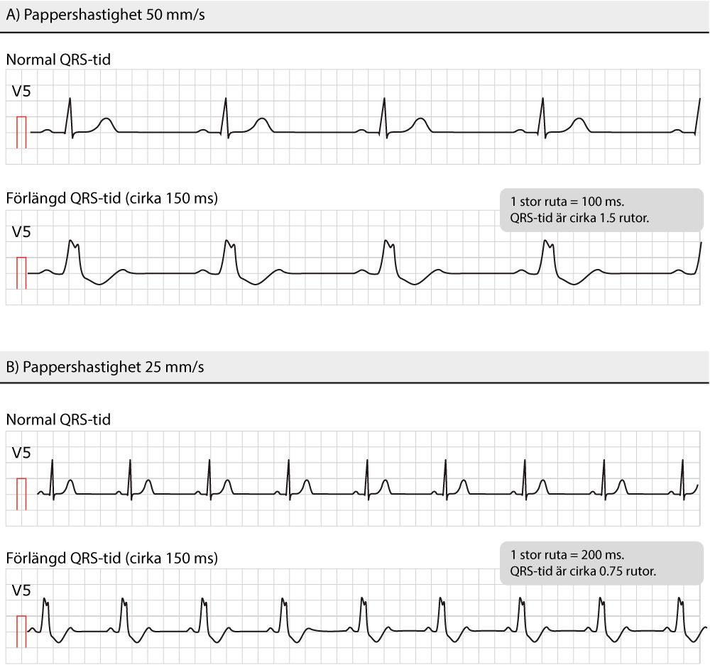 Figur 26. Exempel på breda QRS-komplex.