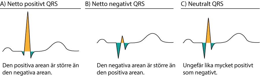 Figur 24. Positiva och negativa kammarkomplex.