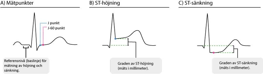 Figur 31. ST-sträckan och mätpunkterna.