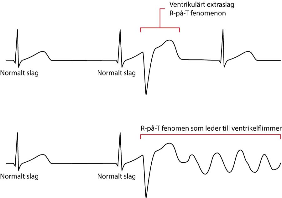 Figur 6 B. R-på-T fenomen
