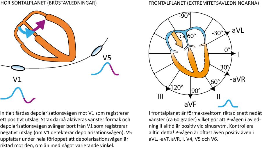 Figur 20. P-vågen i avledning II och V1