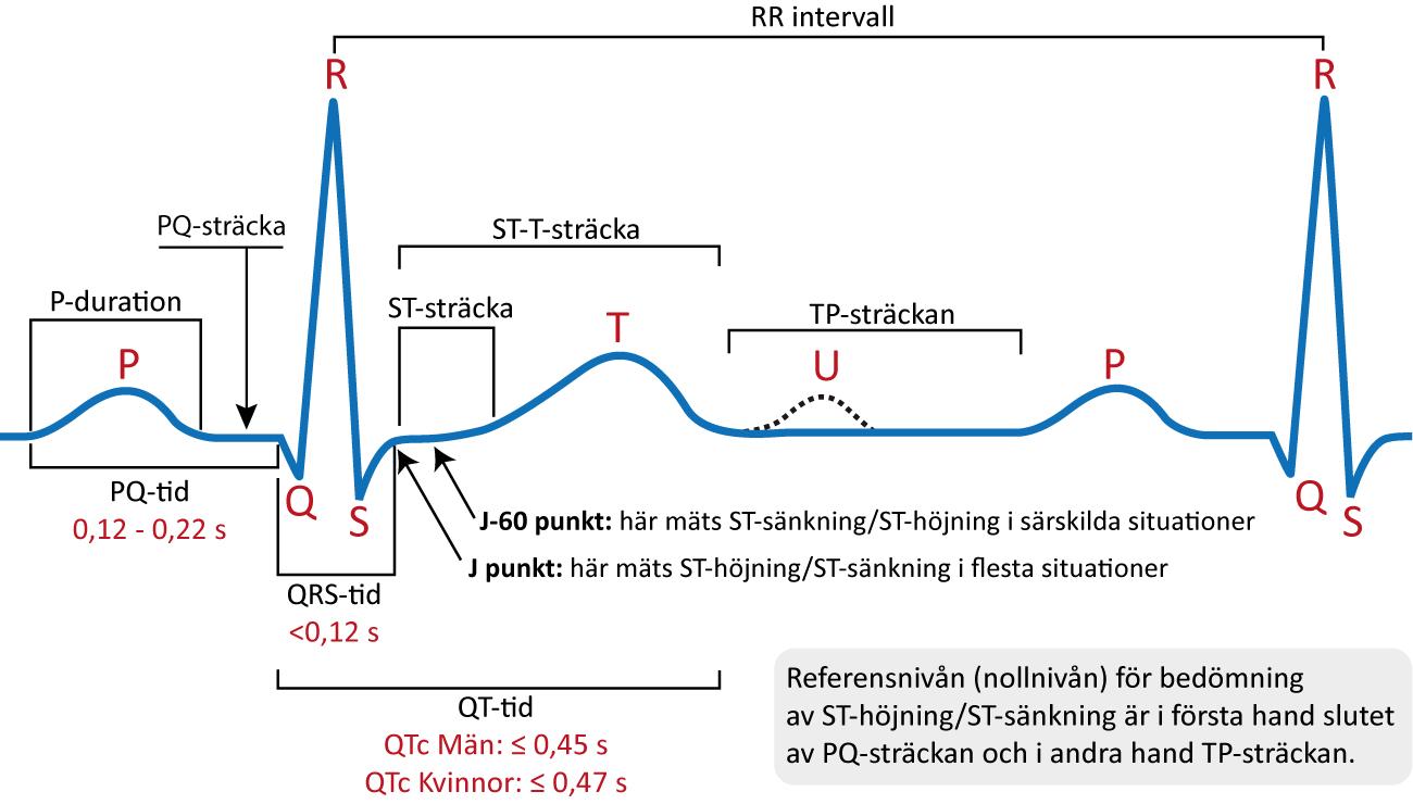 Figur 19. Den klassiska EKG-kurvan. Kammarkomplexet kallas även QRS-komplex, oavsett om det saknas någon av komponenterna i QRS.