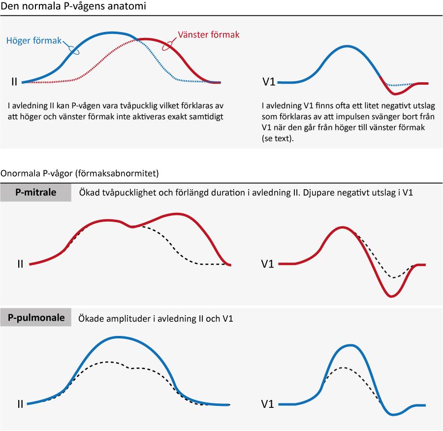 Figur 21. P-vågens utseende samt P-vågsförändringar som avspeglar förmaksabnormitet.