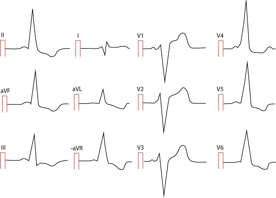 En 30-årig man söker på akutmottagningen i Göteborg. Han besväras av bröstsmärta, andnöd och hjärtklappningar.