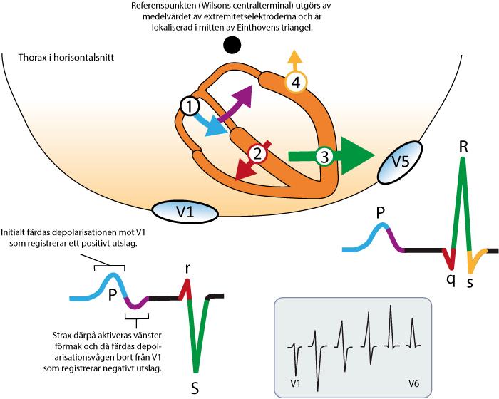 Figur 24. Kammarkomplexets uppkomst. Inspirerad av Electrocardiology, MacFarlane et al, Springer (2010).