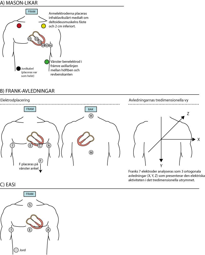 Figur 18. Alternativa avledningssystem. Källa: Pahlm & Sörnmo (Modern Elektrokardiologi, Studentlitteratur 2006).