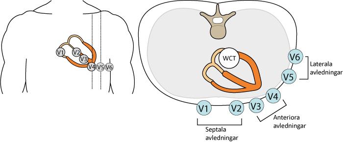 Figur 15. Bröstavledningar (prekordialavledningar). WCT = Wilsons centralterminal.