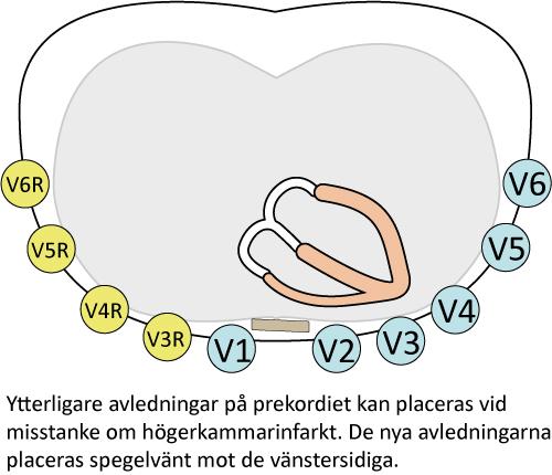 Figur 16. Högersidiga bröstavledningar vid högerkammarinfarkt. Dessa avledningar bör anbringas vid inferior infarkt för att utröna om även höger kammare drabbats.