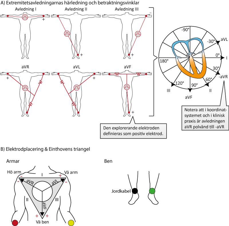 Figur 14. Extremitetsavledningarnas spatiala organisation och betraktningsvinklar. Notera att elektroden på höger ben (svart) inte analyseras, den används för att filtrera störningar. I, II och III's spatiala organisation kan presenteras som Einthovens triangel.