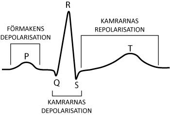 Figur 7. Den klassiska EKG-kurvan och de händelser som avspeglas. På denna registrering ses ett kammarkomplex som består av Q-, R- och S-våg (men en eller flera av dessa kan saknas under normala förhållanden).