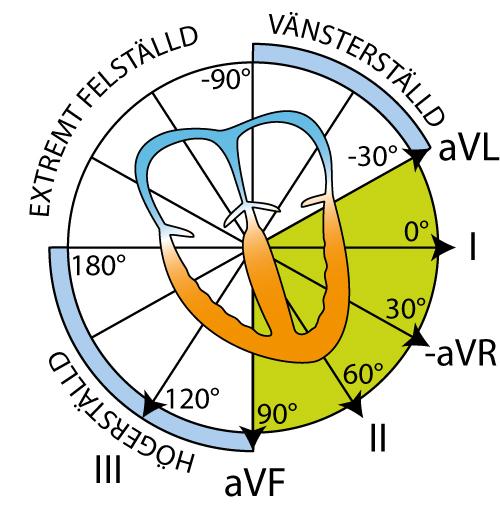 Figur 32. Extremitetsavledningarna och hjärtats el-axel.