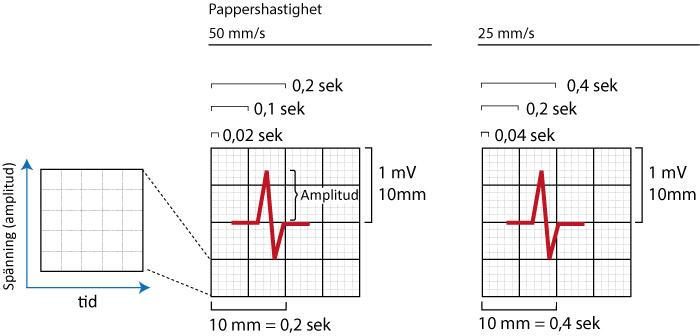 Figur 12. Pappershastighet och amplituder. I Sverige används 50 mm/s som standard men de flesta maskiner har flera hastighetsalternativ. Vid rytmregistrering är 25 mm/s eller 10 mm/s vanligt.
