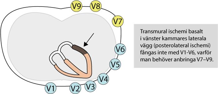 Figur 17. Posteriora bröstavledningar vid posterolateral ST-höjningsinfarkt. Dessa avledningar bör anbringas vid misstanke om posterolateral engagemang (reciproka ST-sänkningar i V1-V3).