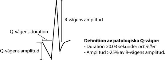 Figur 27. Bedömning av Q-vågor.