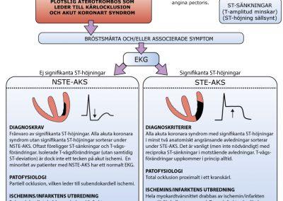 Klassifikation av akuta koronara syndrom.