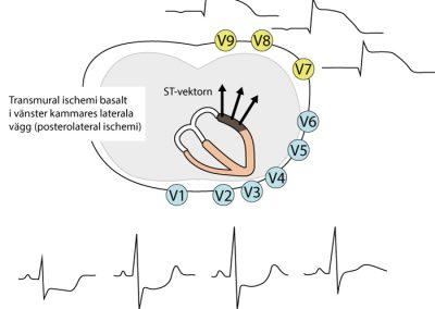 Figur 86. Posterolateral transmural ischemi ger ST-höjningar posterior (V7–V9) och ST-sänkningar i V1–V2 (eventuellt V3).