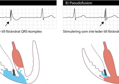 Fusionsslag vid pacemakerstimulering.