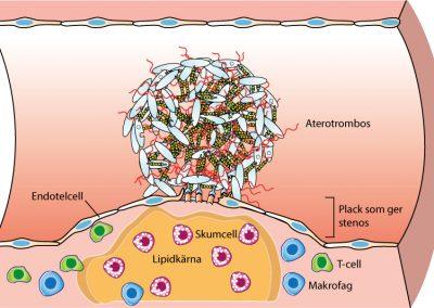Plackruptur akuta koronara syndrom.