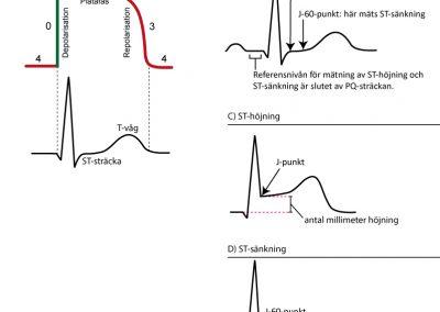 ST-T-förändringar vid ischemi